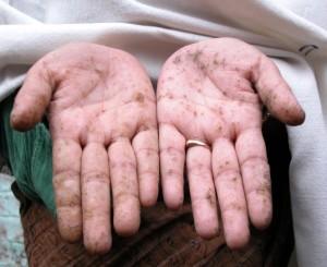 groundwater arsenic poisoning